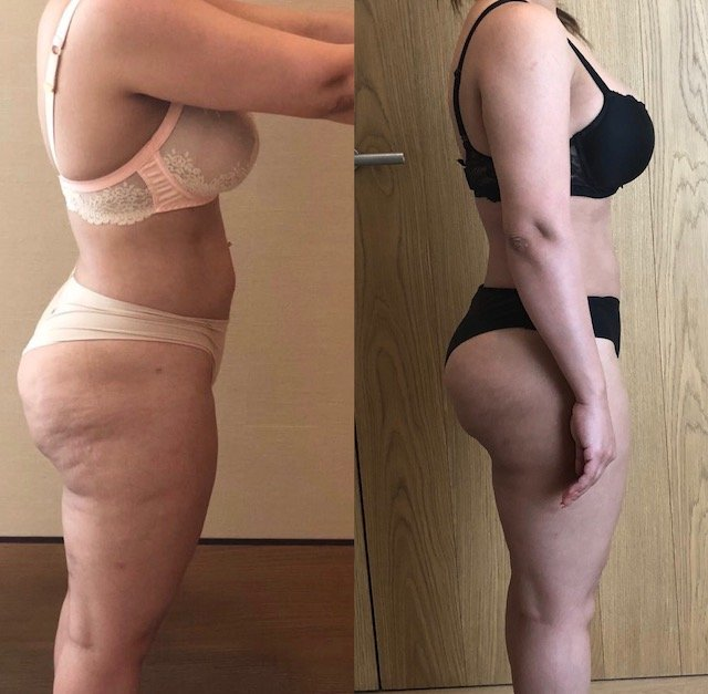 dubai personal trainer karina - client before and after image 4